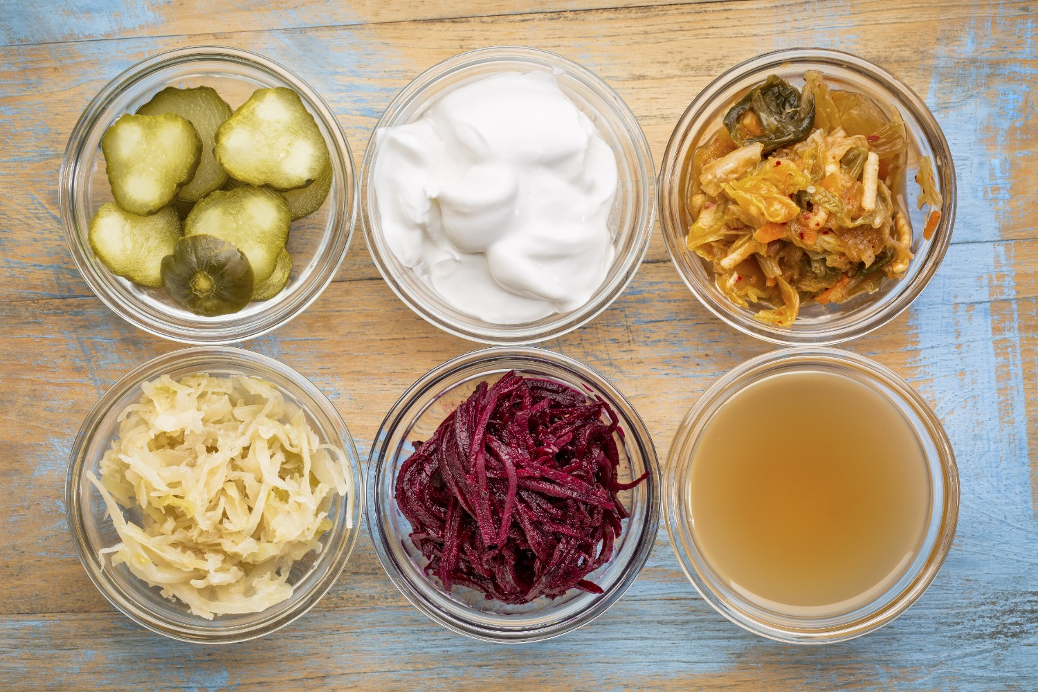 Probiotics are necessary for your health | Shutterstock